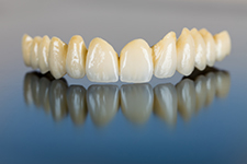 First Choice Dental Lab Ceramic Crowns