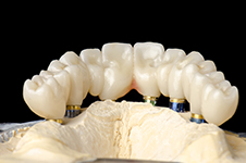 First Choice Dental Lab Implant Crowns