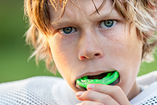 First Choice Dental Lab Sports Mouthguard