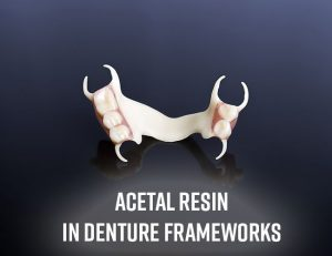 Denture Frameworks at First Choice Dental Lab® in Illinois