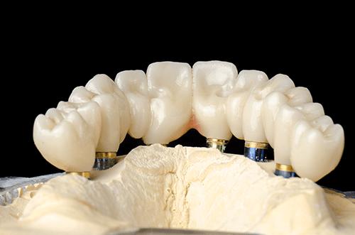 Katana™ UTML Zirconia with First Choice Dental Lab®