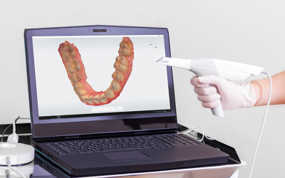 Intraoral Scanning Becoming Dentistry Standard