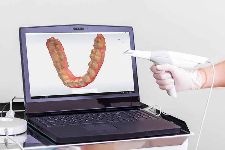 dental lab scanner - scanner leasing program