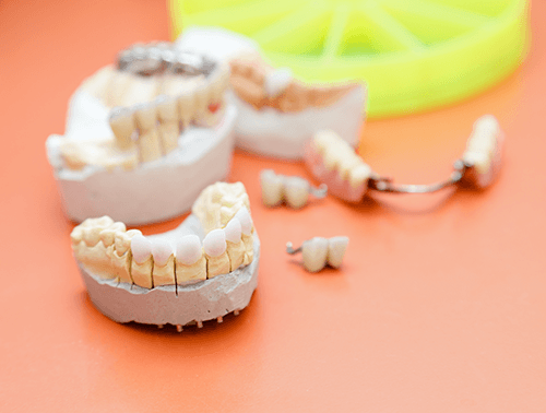 Dental Crowns with First Choice Dental Lab