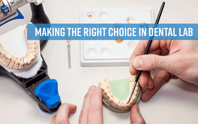How to Choose the Right Dental Lab