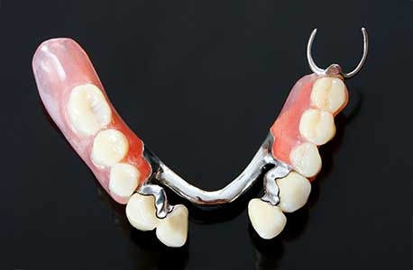Contour to Partial Flexible Partial Removable Dental Restoration