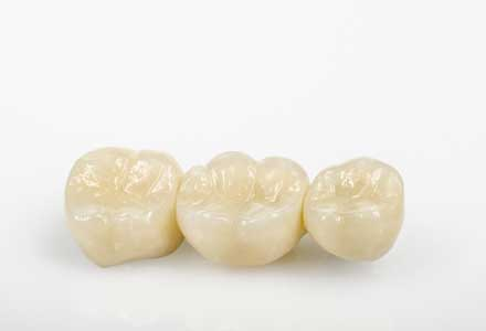 Crown and Bridge Dental restorations