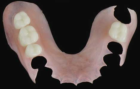 Valplast Flexible Partial Removable Dental Restoration