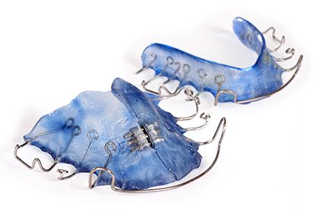 Hawley Retainers First Choice Dental Lab
