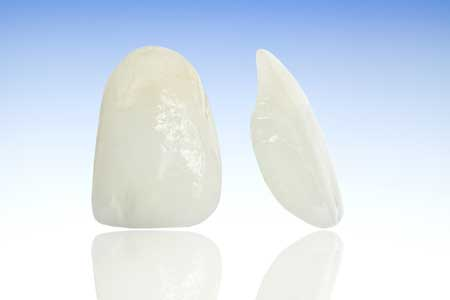 Crown and Bridge Dental restorations - Porcelain to Zirconia Dental Restoration