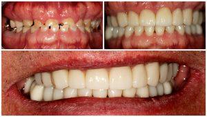 Digital Workflow for a Dental Restoration - Chicago - First Choice Dental Lab
