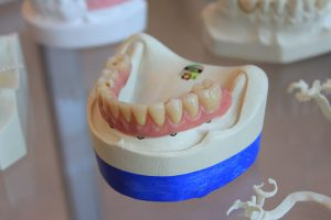 3d printers and dental technology
