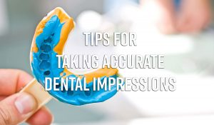Dental Impression - taking accurate dental impressions