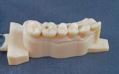 Screw-Retained or Cement-Retained Zirconia Crowns?